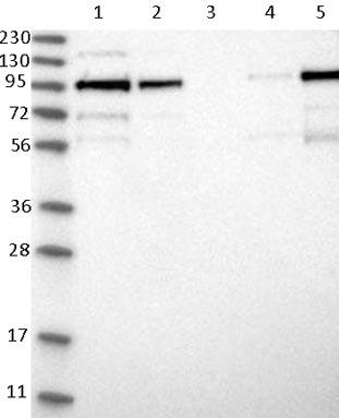 Western blot - Anti-LRCH1 antibody (ab121679)