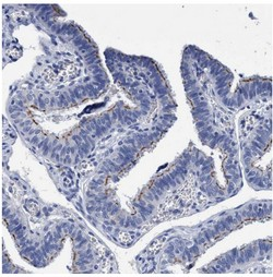 Immunohistochemistry (Formalin/PFA-fixed paraffin-embedded sections) - Anti-CROCC antibody (ab121694)