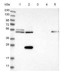 Western blot - Anti-CDRL2 antibody (ab121705)