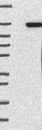 Western blot - Anti-GARNL3 antibody (ab121712)