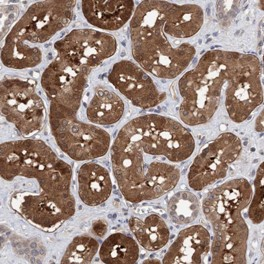 Immunohistochemistry (Formalin/PFA-fixed paraffin-embedded sections) - Anti-TSTD2 antibody (ab121714)