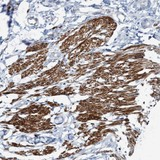 Immunohistochemistry (Formalin/PFA-fixed paraffin-embedded sections) - Anti-FAM187A antibody (ab121717)