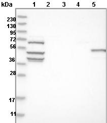 Western blot - Anti-JAKMIP3 antibody (ab121723)