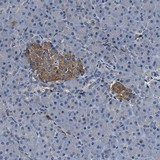 Immunohistochemistry (Formalin/PFA-fixed paraffin-embedded sections) - Anti-SLFN11 antibody (ab121731)