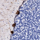 Immunohistochemistry (Formalin/PFA-fixed paraffin-embedded sections) - Anti-FAM100B antibody (ab121734)