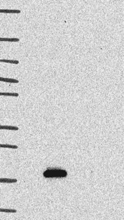 Western blot - Anti-SPACA3 antibody (ab121768)