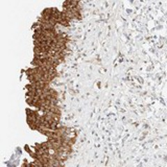 Immunohistochemistry (Formalin/PFA-fixed paraffin-embedded sections) - Anti-TBC1D8B antibody (ab121780)