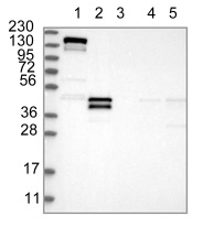 Western blot - Anti-LMCD1 antibody (ab121788)
