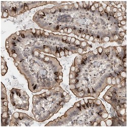 Immunohistochemistry (Formalin/PFA-fixed paraffin-embedded sections) - Anti-ZNF704 antibody (ab121804)