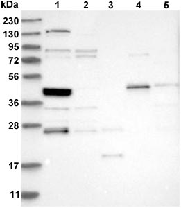 Western blot - Anti-SMAP2 antibody (ab121811)