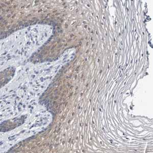 Immunohistochemistry (Formalin/PFA-fixed paraffin-embedded sections)-Anti-FAM83H antibody(ab121816)