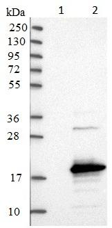 Western blot - Anti-SAMD12 antibody (ab121831)
