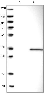 Western blot - Anti-SLD5 antibody (ab121839)