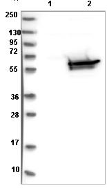 Western blot - Anti-Dihydropyrimidinase  antibody (ab121844)