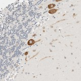 Immunohistochemistry (Formalin/PFA-fixed paraffin-embedded sections) - Anti-C1orf124 antibody (ab121853)