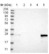 Western blot - Anti-CNPY4 antibody (ab121855)