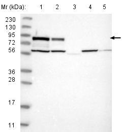 Western blot - Anti-PLC-delta-3 antibody (ab121859)