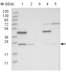 Western blot - Anti-SIKE1 antibody (ab121860)