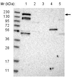 Western blot - Anti-ARHGEF10L antibody (ab121866)