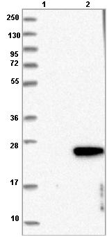 Western blot - Anti-C1orf64 antibody (ab121878)