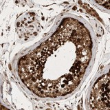 Immunohistochemistry (Formalin/PFA-fixed paraffin-embedded sections) - Anti-C7orf46 antibody (ab121885)