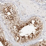 Immunohistochemistry (Formalin/PFA-fixed paraffin-embedded sections) - Anti-SPINK2 antibody (ab121890)