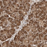 Immunohistochemistry (Formalin/PFA-fixed paraffin-embedded sections) - Anti-FAT3 antibody (ab121896)
