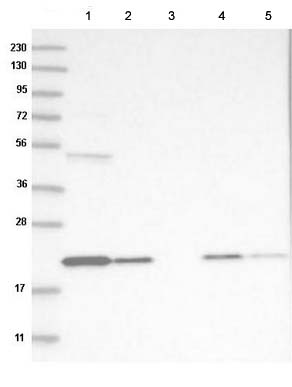 Western blot - Anti-TMEM199 antibody (ab121907)