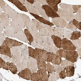Immunohistochemistry (Formalin/PFA-fixed paraffin-embedded sections) - Anti-SYDE2 antibody (ab121917)
