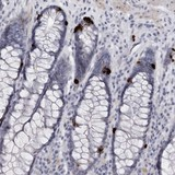 Immunohistochemistry (Formalin/PFA-fixed paraffin-embedded sections) - Anti-TNR antibody (ab121921)
