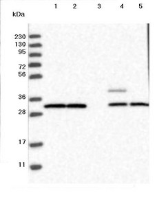 Western blot - Anti-UBE2CBP antibody (ab121927)