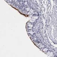 Immunohistochemistry (Formalin/PFA-fixed paraffin-embedded sections) - Anti-C1orf114 antibody (ab121933)