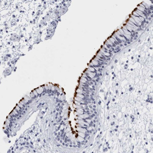 Immunohistochemistry (Formalin/PFA-fixed paraffin-embedded sections) - Anti-C1orf114 antibody (ab121937)