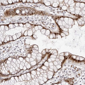 Immunohistochemistry (Formalin/PFA-fixed paraffin-embedded sections) - Anti-PKHG1 antibody (ab121938)