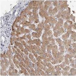 Immunohistochemistry (Formalin/PFA-fixed paraffin-embedded sections) - Anti-Marapsin2 antibody (ab121968)