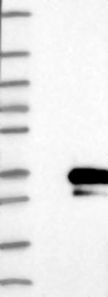 Western blot - Anti-RSG1 antibody (ab121990)