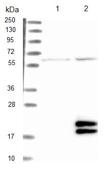 Western blot - Anti-LYPD2 antibody (ab122004)