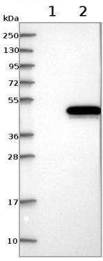 Western blot - Anti-C1orf135 antibody (ab122014)