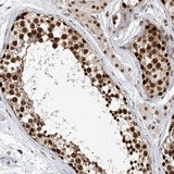 Immunohistochemistry (Formalin/PFA-fixed paraffin-embedded sections) - Anti-ZNF470 antibody (ab122030)