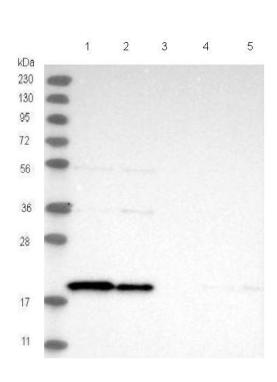Western blot - Anti-TIMM17B antibody (ab122034)