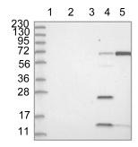 Western blot - Anti-HSD17B13 antibody (ab122036)