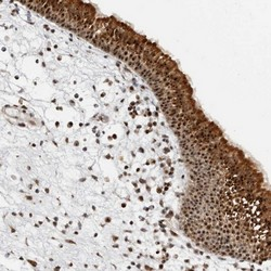 Immunohistochemistry (Formalin/PFA-fixed paraffin-embedded sections) - Anti-NOL7 antibody (ab122041)