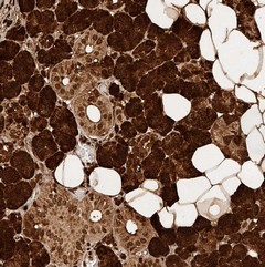 Immunohistochemistry (Formalin/PFA-fixed paraffin-embedded sections) - Anti-KIAA2018 antibody (ab122043)
