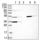 Western blot - Anti-TTC38 antibody (ab122045)
