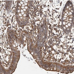 Immunohistochemistry (Formalin/PFA-fixed paraffin-embedded sections) - Anti-FAM116B antibody (ab122067)