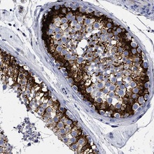 Immunohistochemistry (Formalin/PFA-fixed paraffin-embedded sections) - Anti-EFCAB7 antibody (ab122071)
