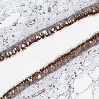 Immunohistochemistry (Formalin/PFA-fixed paraffin-embedded sections) - Anti-TTC24  antibody (ab122085)