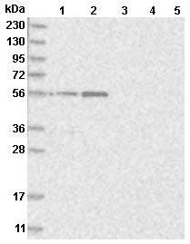 Western blot - Anti-KCTD20 antibody (ab122094)