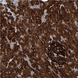 Immunohistochemistry (Formalin/PFA-fixed paraffin-embedded sections) - Anti-YRDC antibody (ab122098)