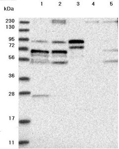 Western blot - Anti-LTV1 antibody (ab122100)